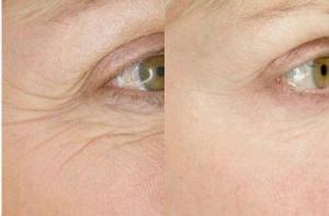 After 8 Weeks Eye Cream