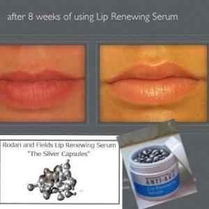 After 8 Weeks Lip Serum