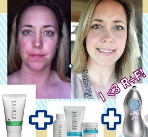 Before and After Redefine Regimen