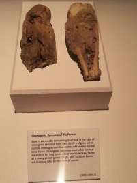 Sarcoma of the Femur