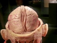 Human Head and Brain