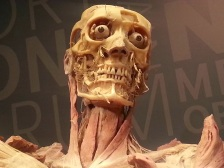 Bone Structure in Human Head