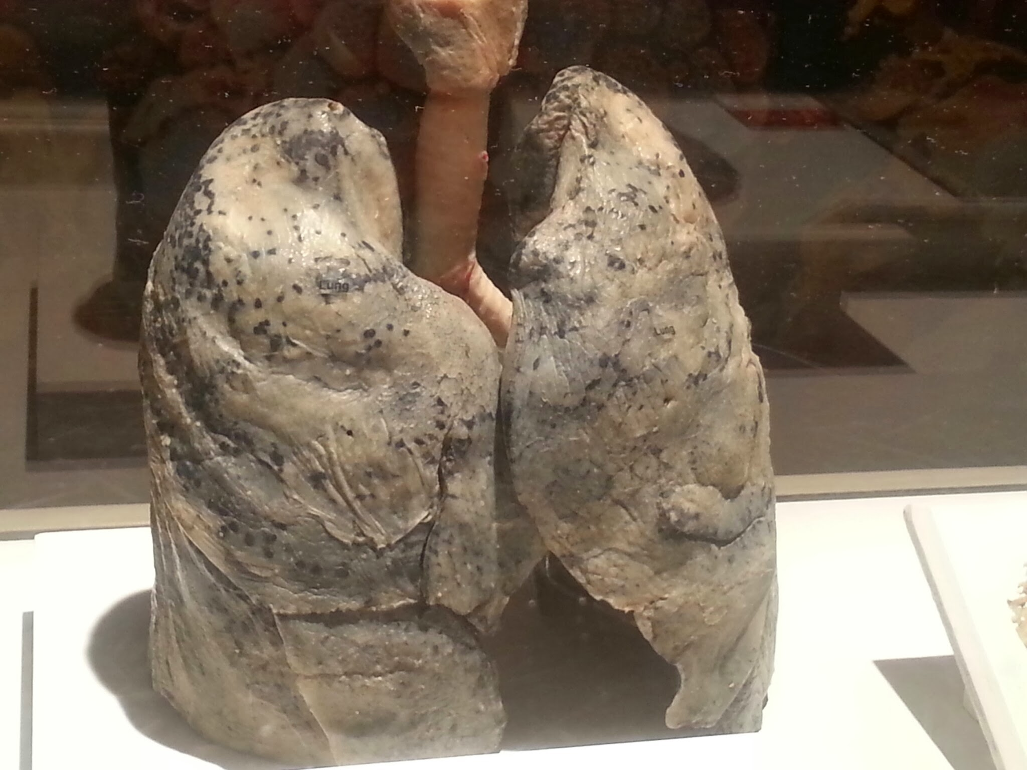 Healthy Lungs – Dani's Decadent Deals