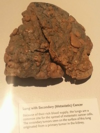 Lung with Secondary Metastatic Cancer
