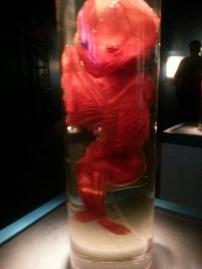 Fully Formed Fetus