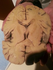 Cross Section of Human Brain