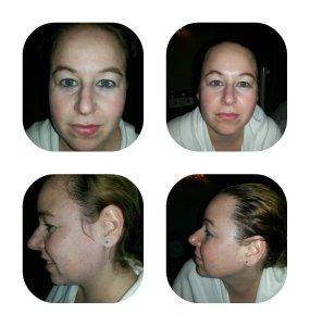 burke williams, anti aging facial, H2V, spa therapy